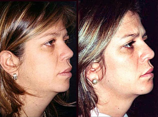 Mentoplastia + Aumento de dorso y punta nasal + Liposucción de papada