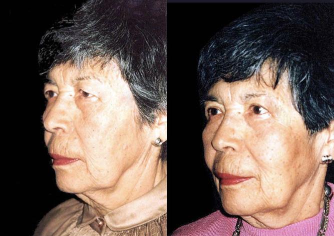 Cirugía de párpado superior con disminución del campo visual.