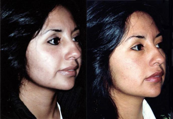 Cantoplexia de ojo derecho + injerto graso en párpado inferior por perdida de globo ocular derecho.