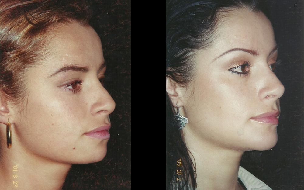 Mentoplastia + Rinoplastia secundaria. Corrección de V invertida con injertos separadores + Aumento de dorso nasal óseo + Proyección y definición de punta nasal. Resultado a las 4 años.