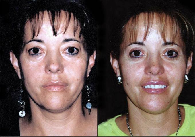 Mentoplastia + Liposucción de papada + Blefaroplastia superior e inferior