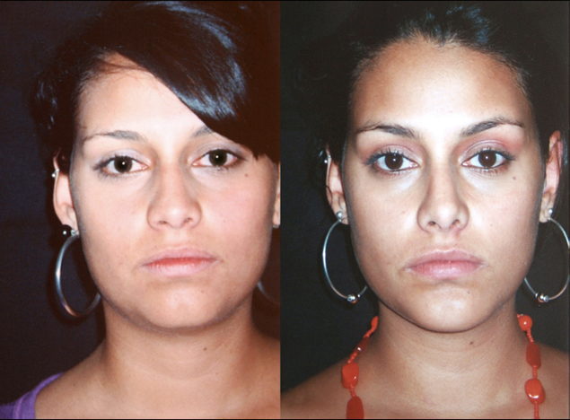 Mentoplastia + Rinoplastia y + liposucción de papada