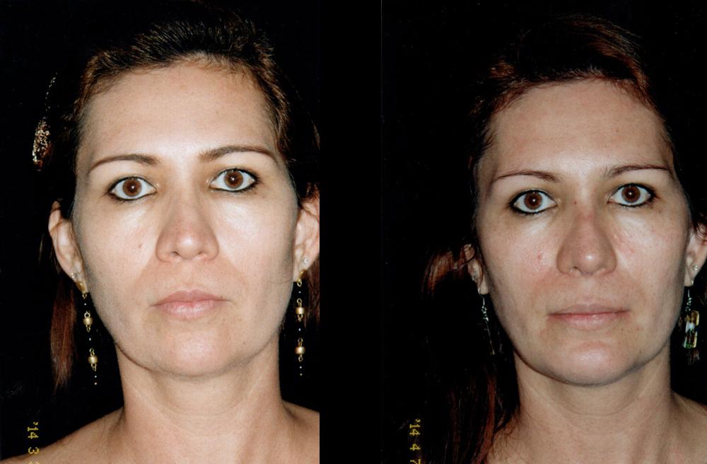 Mentoplastia y Rinoplastia secundaria con aumento de dorso, punta y ángulo Nasal. La descripción de la parte superior e inferior.