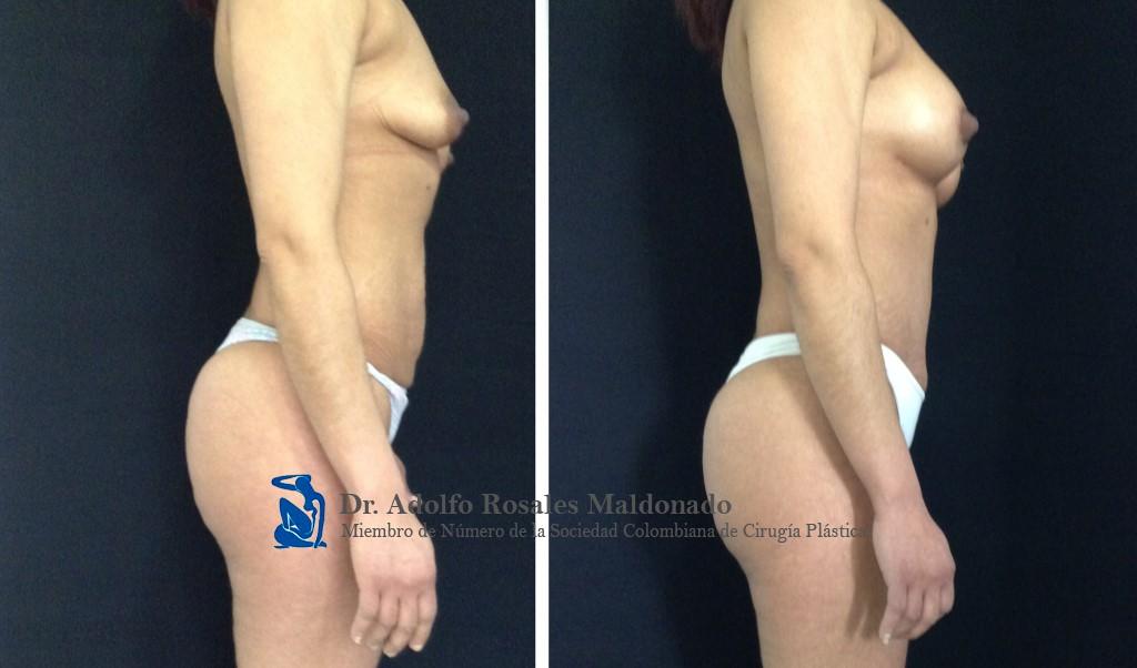 Abdominoplastia + Liposucción de Cintura + Mamoplastia de aumento sin cicatriz visible Resultados a los 3 meses