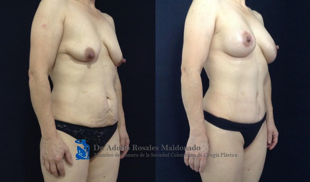 Abdominoplastia + Liposucción de pliegue axilar posterior + espalda + cintura + cadera + Mamoplastia de aumento con levantamiento peri areolar Resultados al año