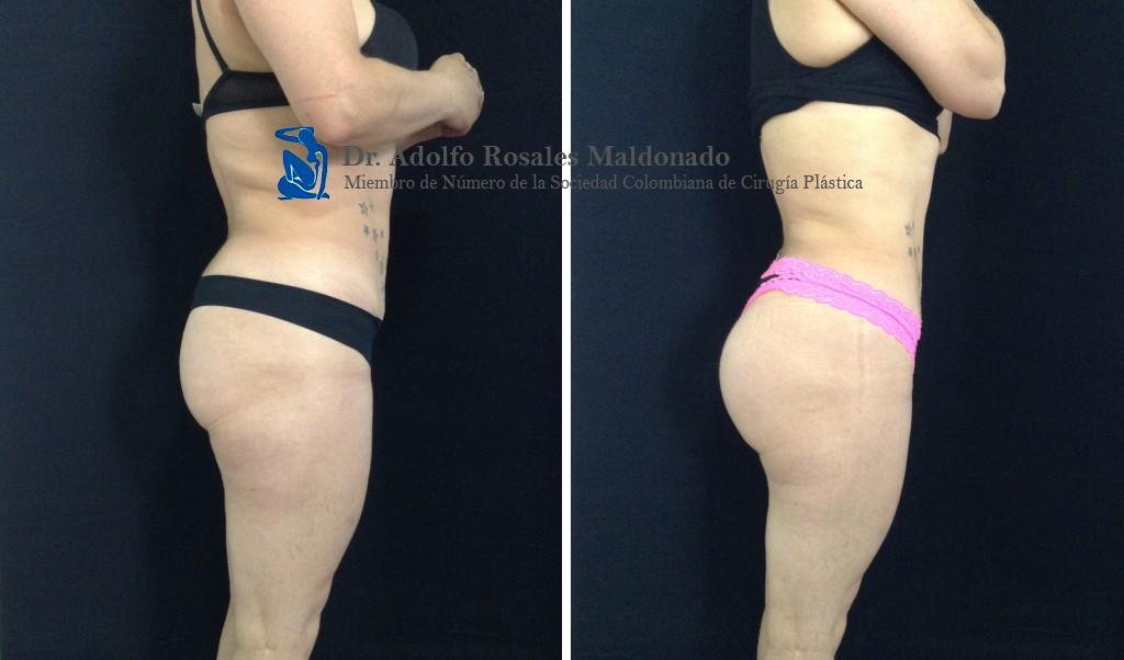 Glúteoplastia Resultado a los 6 meses
