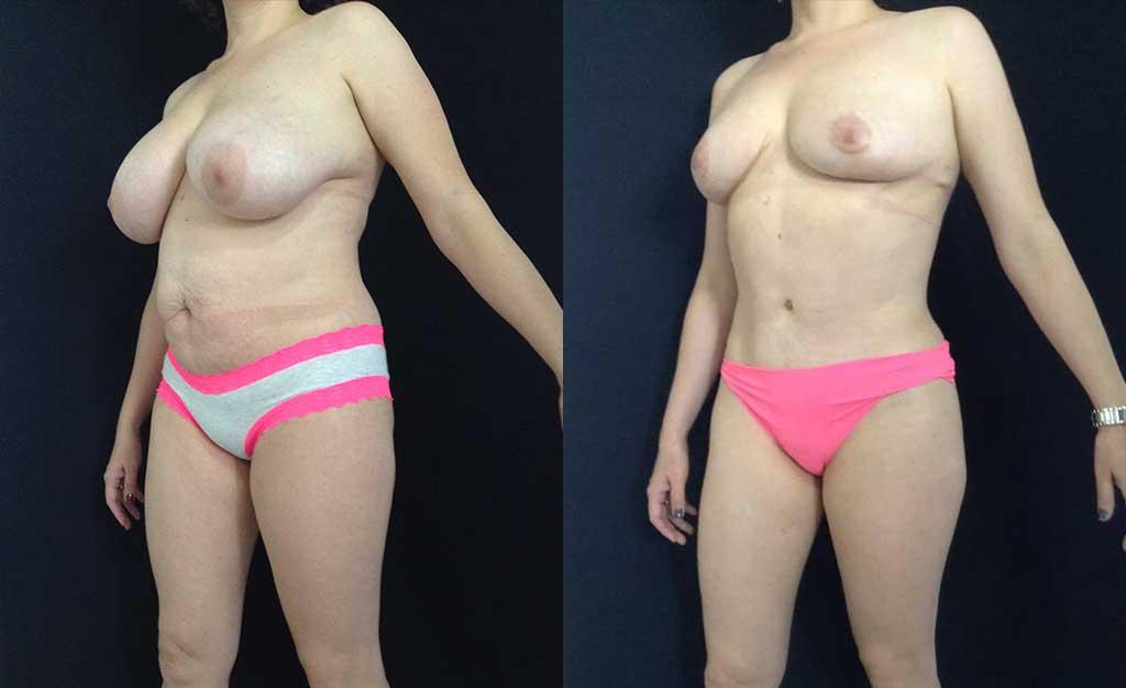 Abdominoplastia + Mamoplastia de Reducción resultado a los 5 meses de cirugía.