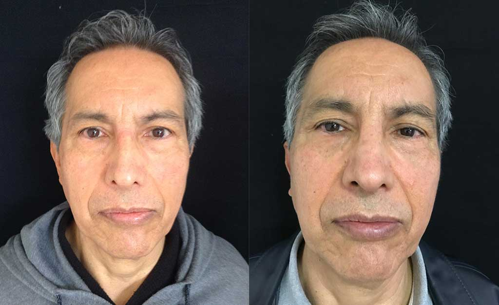 Disminución de dorso óseo + colocación de Spreader Graft + colocación injerto pared lateral + definición punta nasal resultado a los 5 meses de cirugía