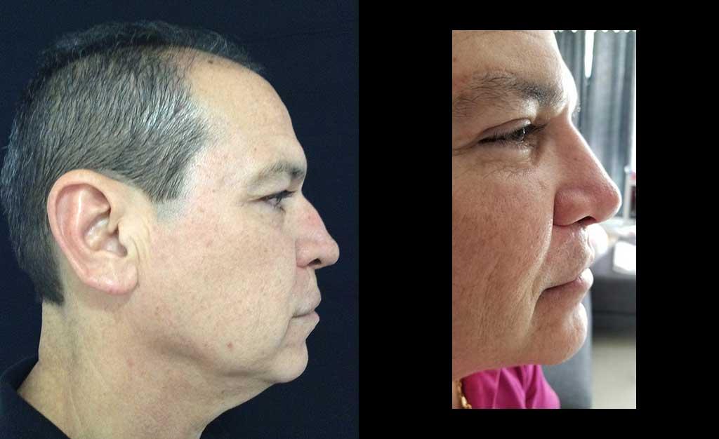 Aumento de radix + aumento dorso cartilaginoso + definición y proyección punta nasal resultado al año de cirugía