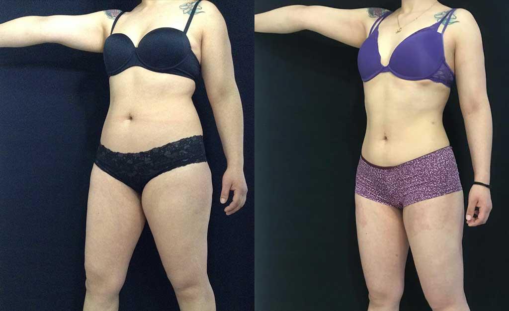 Lipoescultura + abdominoplastia resultados a los 8 meses de cirugía.