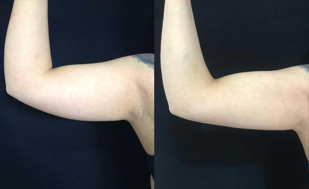 Liposucción de brazos resultados a los 8 meses de cirugía.