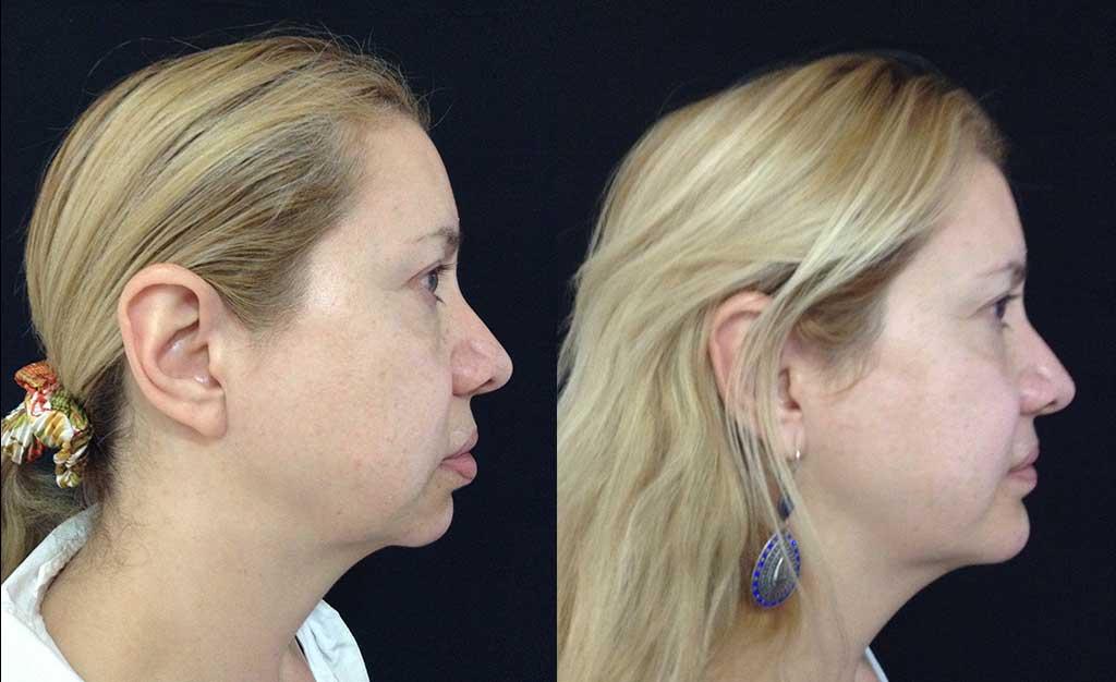 Mentoplastia + bichectomia + Queiloplastia labio superior