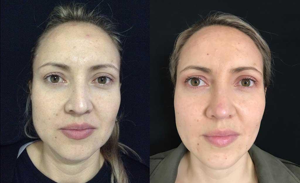 Disminución de dorso cartilaginoso + colocación de Spreader Graft + aumento de punta nasal + osteotomías resultado a los 9 meses y 10 días de cirugía