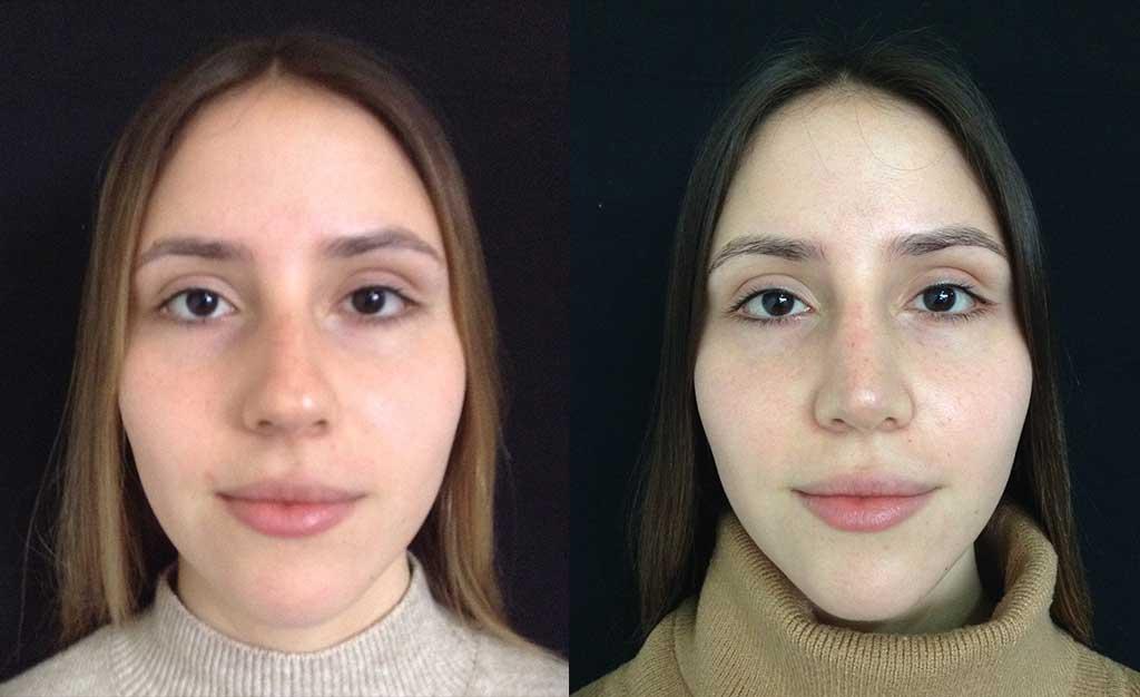 Reducción dorso cartilaginoso y óseo + aumento de radix + Spreader Graft + definición de punta nasal + osteotomías resultados a los 8 meses de cirugía